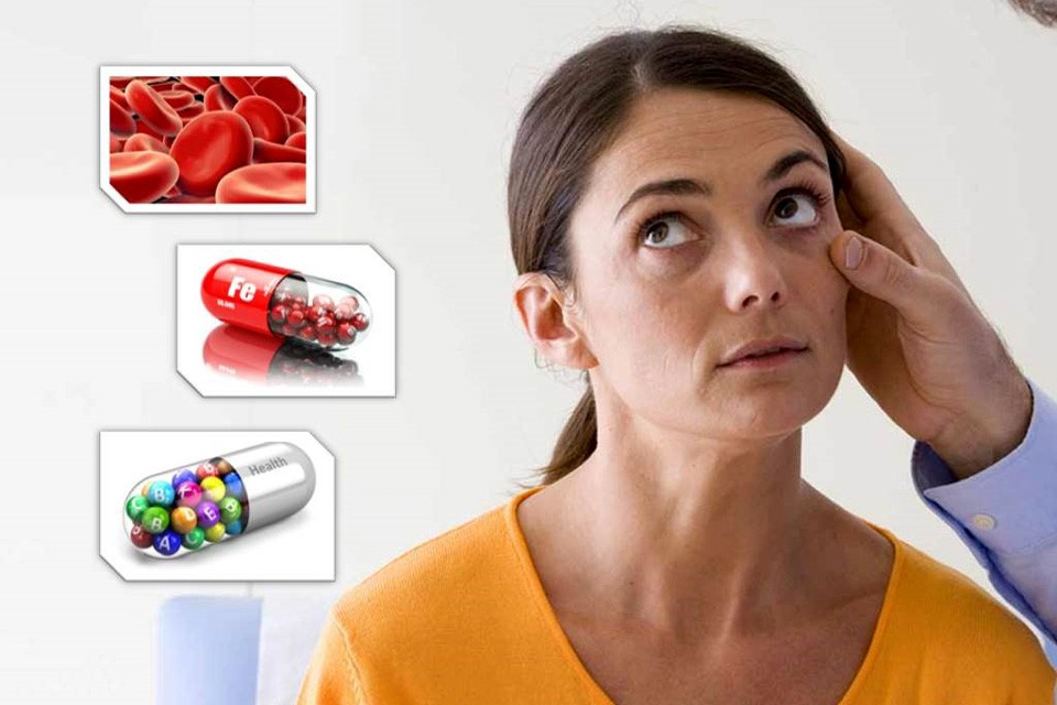 Дефицит железа в организме-причины и как его повысить.