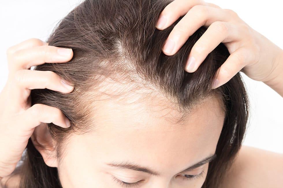 Может ли Йод помочь при выпадении волос?