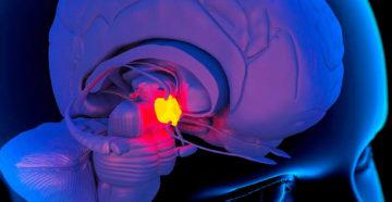 Что такое пинеальная (шишковидная) железа и ее функция