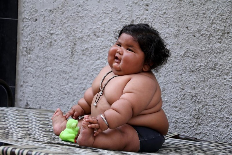 Витамин Д и ожирение детей!