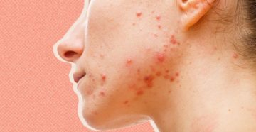 """Может ли """"перезагрузка"""" ваших гормонов улучшить вашу кожу?"""