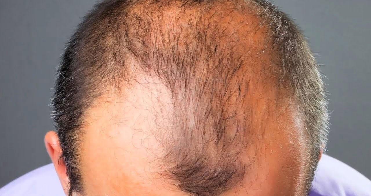 Как быстро отрастить волосы мужчине и предотвратить облысение
