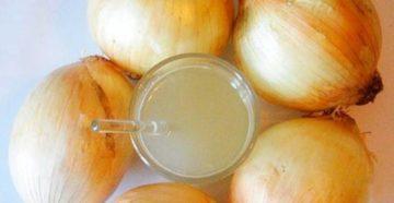 Как луковый сок может помочь избавиться от перхоти?