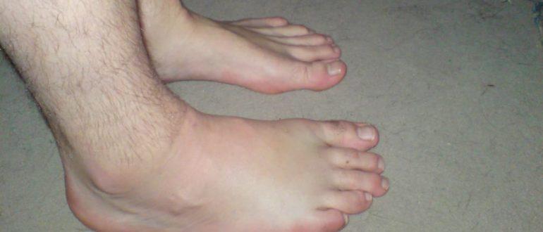 Опухают ноги: 16 эффективных домашних средств лечения.