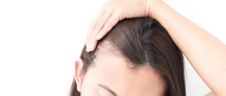 Может ли стресс вызвать выпадение волос и как предотвратить это?