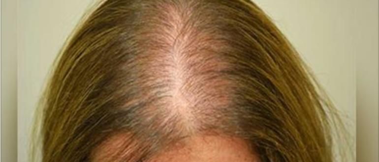 Редеющие волосы: признаки и лечение истончения волос