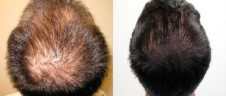 Вызывает ли Тестостерон выпадение волос у женщин и мужчин?