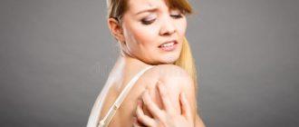 Грибковая инфекция кожи-виды, способы лечения и рецепты.